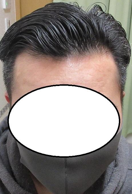 40歳男性。内服と外用で頭髪が完全復活。3年3か月目の経過。