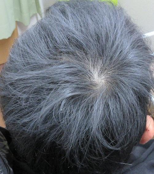 豊洲で薄毛治療。3カ月目の経過。