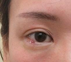 右下眼瞼のまつ毛のところにあるホクロの切除。直後の状態。