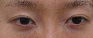 上眼瞼のくぼみに脂肪幹細胞上清液を注入しました。1年目の経過。