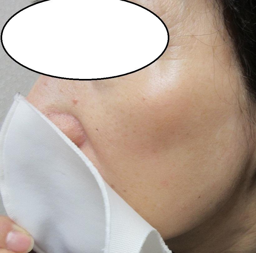 頬のシミのレーザー治療。8カ月目の経過。