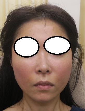7か月でここまで改善。美肌治療、たるみ治療、少しずつやってくださっています。