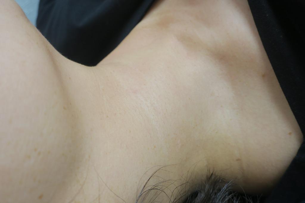 首のイボイボの治療が1~2回の治療でここまできれいになりました。6か月目の経過。
