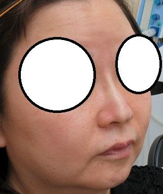 糸による鼻筋形成。オメガVL、直後の状態。