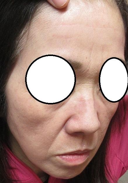 他院でうまくいかなかった鼻のシミレーザー後の色素沈着の治療。ゼオスキン、セラピューティックプログラム3か月目。
