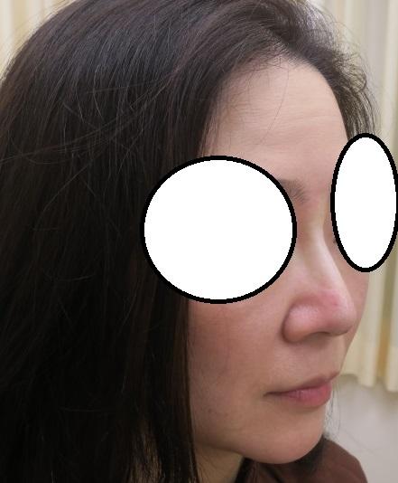 Gメッシュ4本で鼻筋で通しました。高さも少し出ていますね。定期的な追加が必要です。