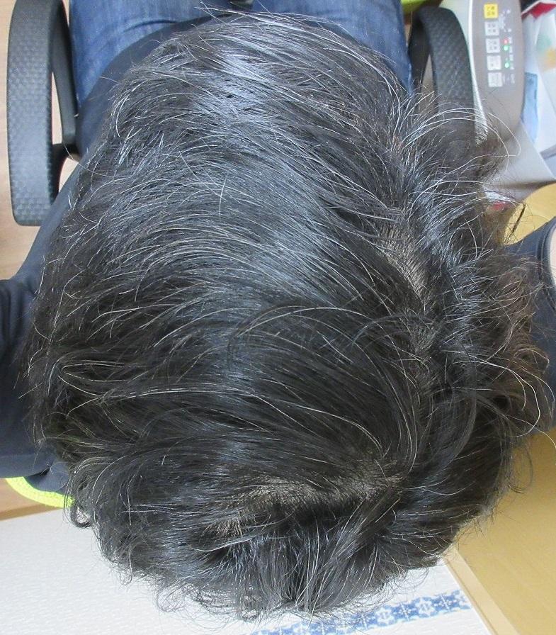 豊洲で薄毛治療。46歳男性(院長)。ドットヘアの内服と外用治療。