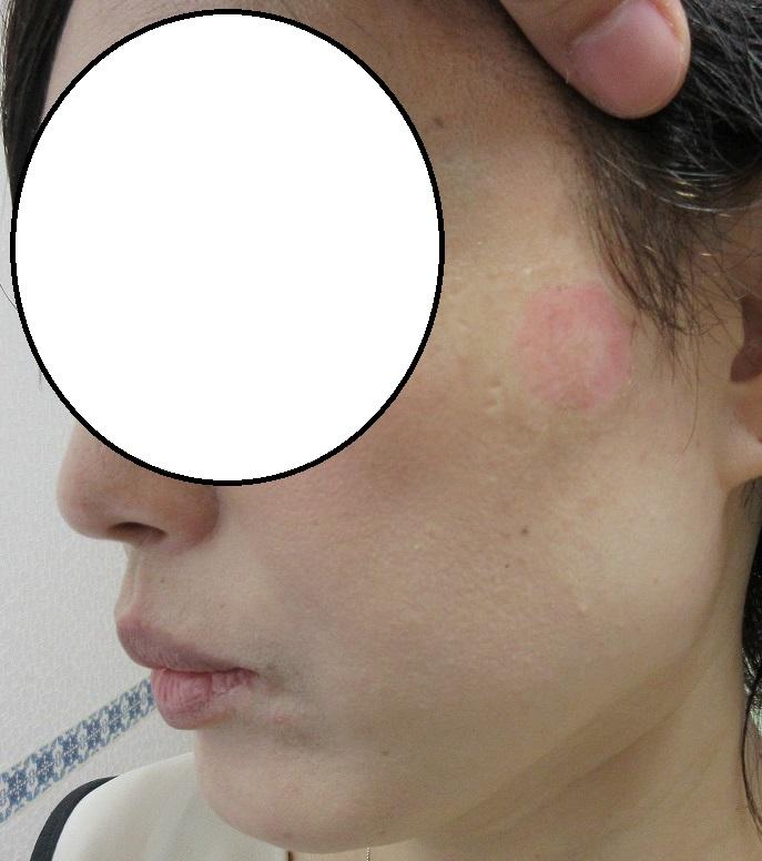こめかみの4センチ大のシミのレーザー治療。2週目の経過。赤みなど参考にしてください。