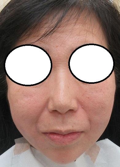 顔の輪郭を変える手術(脂肪吸引・糸リフト・脂肪注入)。直後の状態。