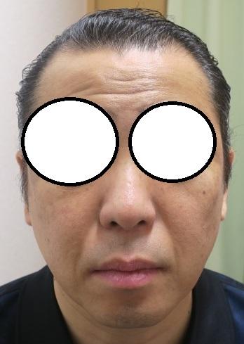 豊洲で薄毛治療(AGA)。3年2か月目の経過。ここまでが限界ですがかなり生えてきているのが分かります。