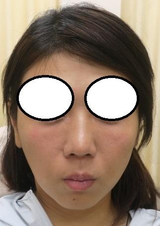 肌再生FGF注入療法、目の下。直後の状態。ほとんど腫れはありません。