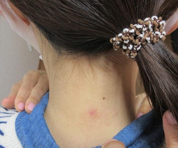 後頚部の首の1センチ大のホクロの切除。2カ月目の経過。