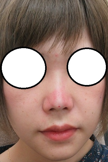 Gメッシュ+Gコグノーズを駆使した鼻の形成。直後の状態。