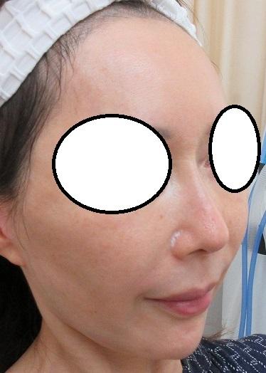 糸による鼻筋形成。4か月目の経過。オメガVL。