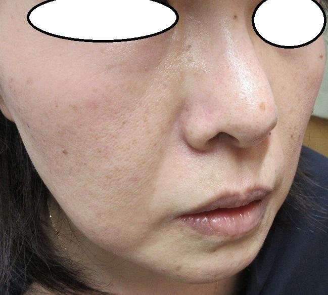小鼻の大きいほくろの切除。5か月目の経過。いい感じです。