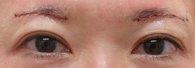 眉下切開法による上眼瞼のたるみ切除術。直後の状態。