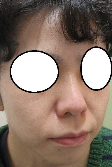 糸による鼻形成。2回処置後の4カ月目の経過。