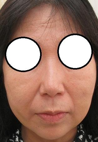 顔の輪郭を変える手術(脂肪吸引・糸リフト・脂肪注入)。1週間目の経過。