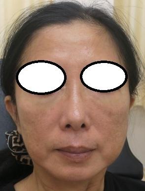 額への美容針リフト、2週目、つやが出てシワが薄くなってきました。本日は目の下にも美容針アイリフト施行(直後の状態)