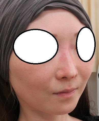 糸による鼻筋形成術。Gメッシュ4本ずつ、直後の状態。
