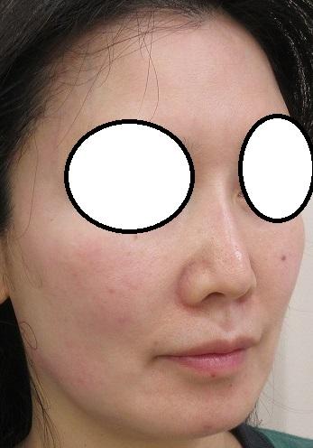 糸による鼻筋形成。Gメッシュ4本。6カ月目の経過。