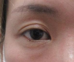 下眼瞼のまつ毛のホクロ切除。3週目の経過。
