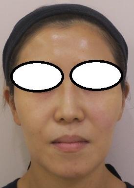 ウルトラセルQプラスリニア開始しています。脂肪溶解を目的として何回かやるとボリュームダウンして小顔効果にもなります。