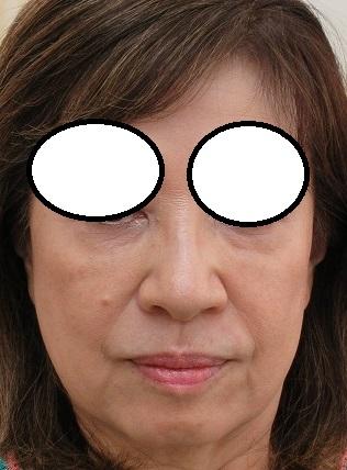 目の下のベビーコラーゲン療法(過去3回+ゴルゴにヒアル1回)+たるみ治療。2年5か月目の経過。