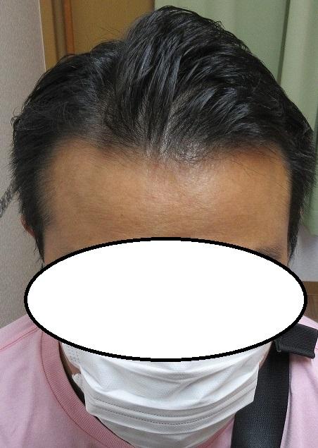 豊洲で薄毛(AGA)治療。4年目の経過。