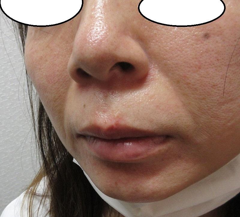 鼻下~口唇にかかるホクロと、目尻のホクロの切除。5か月目の経過。