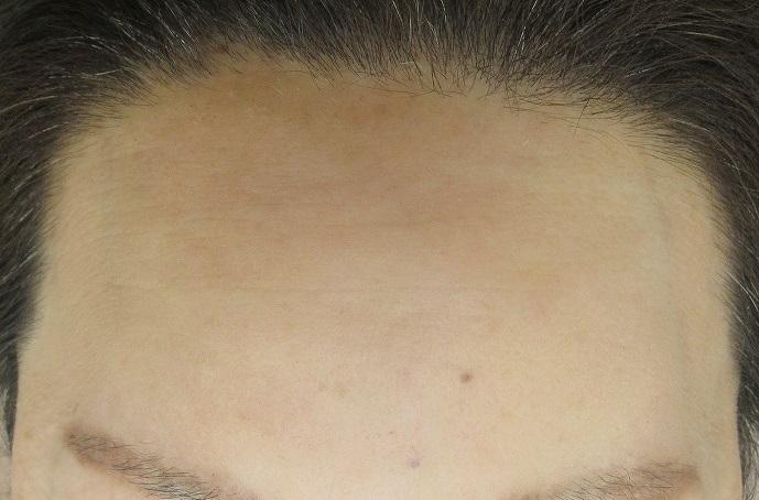 脂肪幹細胞上清液注入による額のしわの治療。2年で4回治療。その半年後の経過。