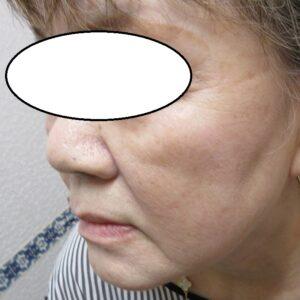 頬の巨大なシミのレーザー治療。3か月目の経過。