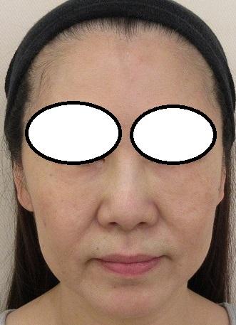 目周りのベビーコラーゲン治療、ウルトラセルQプラスシリーズ、ボトックスなど5年目の経過。