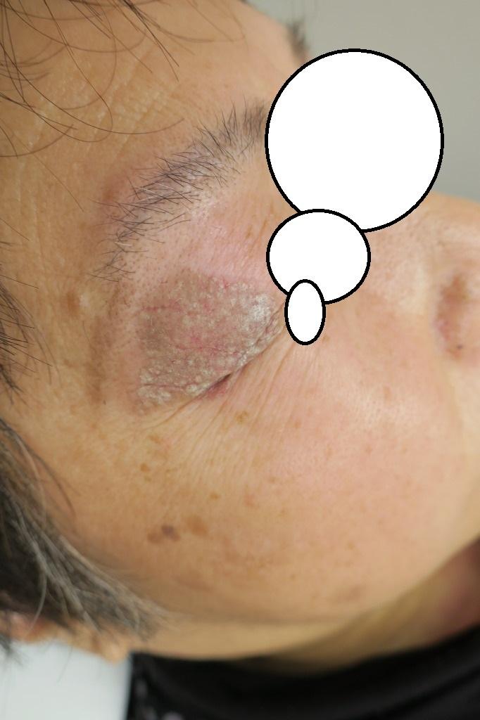 瞼のの大きなシミや顔面のシミのレーザー治療後の経過 3年10か月でここまできれいになりました。
