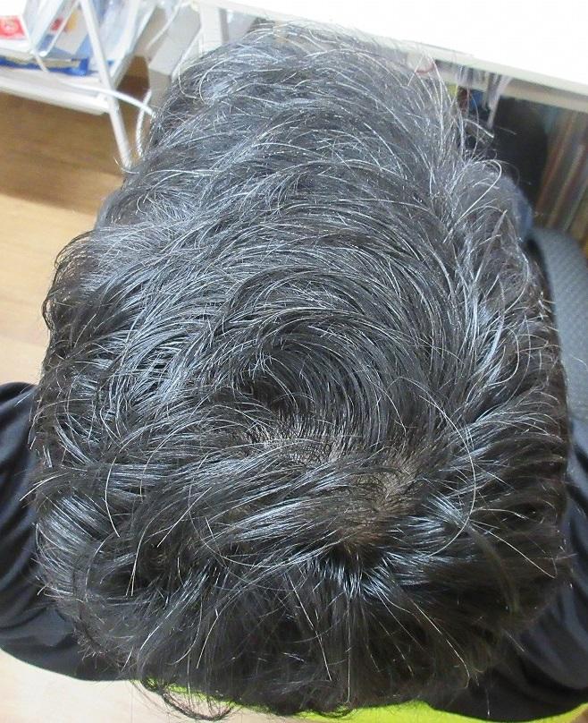 院長の薄毛治療の経過。薄毛治療はわたくしのライフワークです。