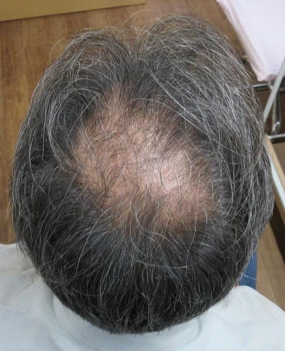 豊洲で薄毛(AGA)治療。9か月目の経過。