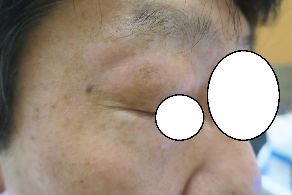 男性の瞼のシミ。2週後の経過。