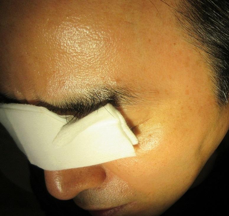 顔のイボレーザー。4年間で何回か治療を受けてくださいました。