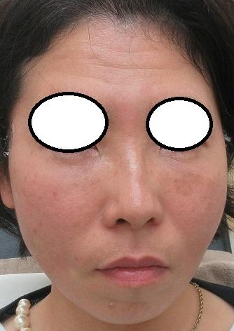 目の下のクマの手術9カ月目の経過+糸リフト直後の状態。
