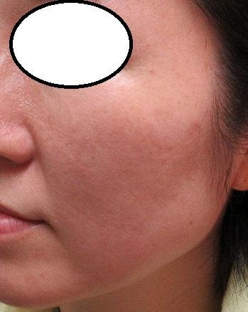 細かい頬のシミのレーザー治療。17日目の経過。