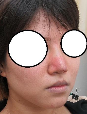 糸による鼻尖形成(ミスコ、クレオパトラノーズ)。8本使用。直後の変化。