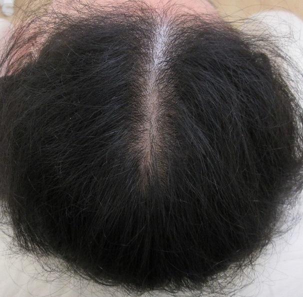 女性の薄毛のメソセラピー(AGF39を使用)。10か月目の経過。