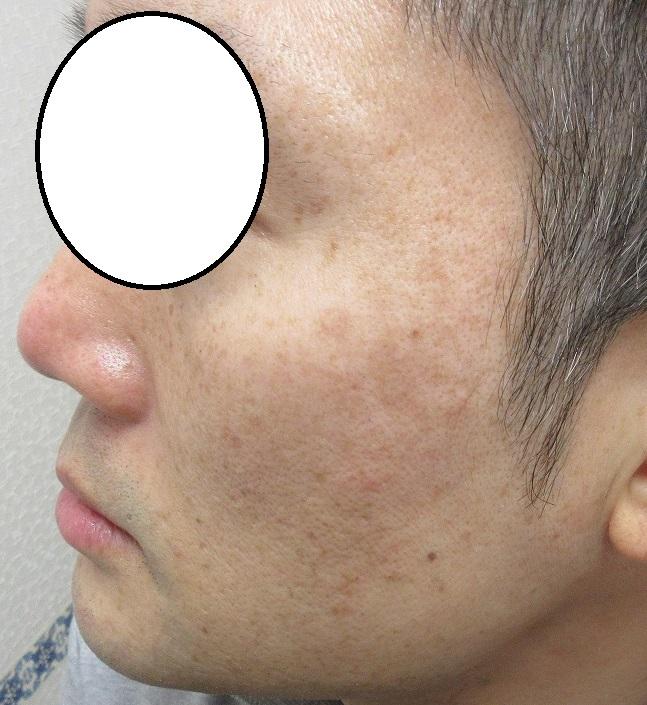 メンズのシミレーザー治療。3カ月目の経過。