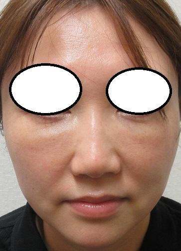 目の下のクマの手術。2年6カ月目の経過。