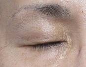 瞼のシミのレーザー治療。2週目の経過。