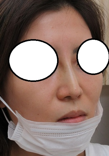 糸による鼻筋形成(糸による隆鼻術)。3か月目の経過。