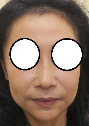 Gメッシュで鼻筋を通してヒアルロン酸で顎を形成しました。直後の状態。鼻筋がいい感じになってきました。