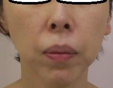 ウルトラセルQプラス、4回目直後の状態。リニア型も好評です。1年ほどでここまで改善しています。