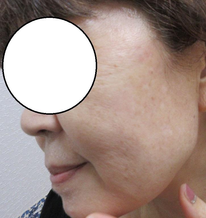 頬の大きいしみのレーザー治療の1か月目の経過。