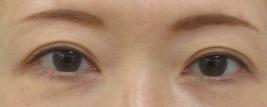 眉下切開法による上眼瞼のたるみ切除術。8カ月目の経過。